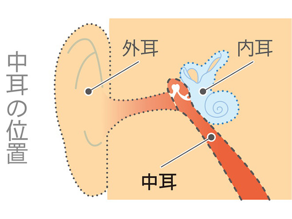 【画像】中耳の病気